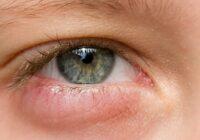 occhi gonfi? come rimediare